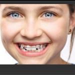 Dinţii înghesuiţi la copii – cauze şi tratament